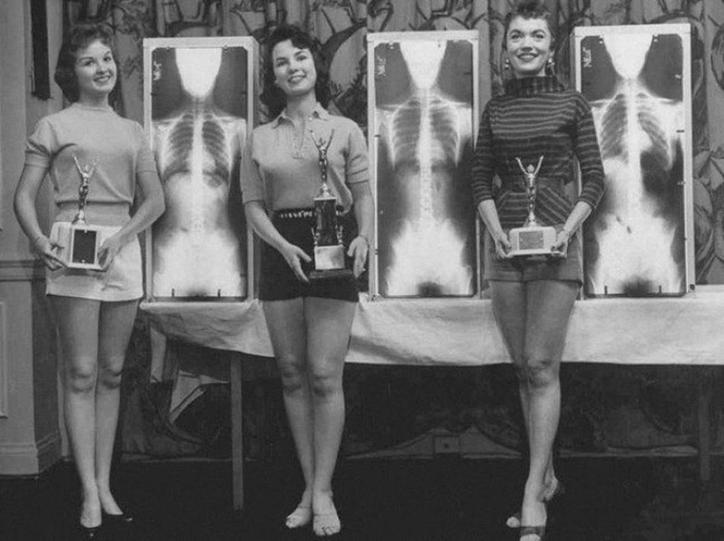 Le regine della postura, 1956